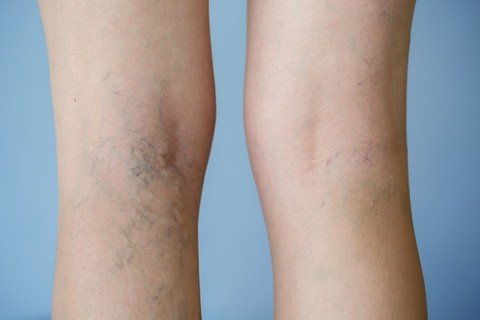A new treatment bids goodbye to varicose veins for...
