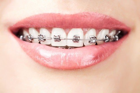 Do braces protect you against nickel allergies?