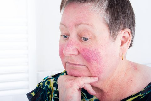 Treat Rosacea Redness with Mirvaso