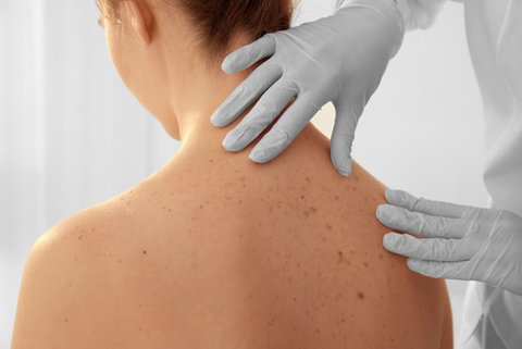 How To Improve Stage I Melanoma Survival Rates