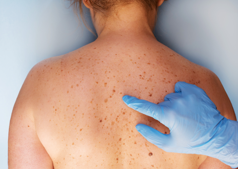 Basal Cell Carcinoma and Treatments