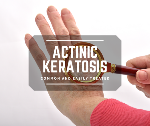 Actinic Keratosis and Treatment Options