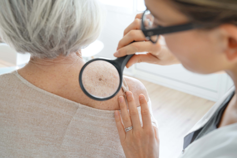 May 2021 - Skin Cancer Awareness with Carrie Byrd, NP